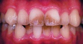 着色がついてしまった歯
