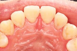 歯のクリーニング後・前歯の裏