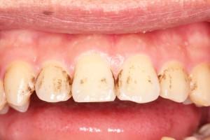 歯のクリーニング前・前歯