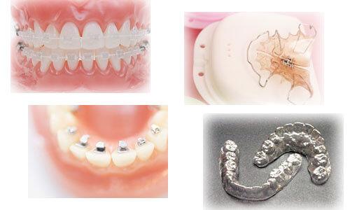矯正装置の種類と治療方法のイメージ