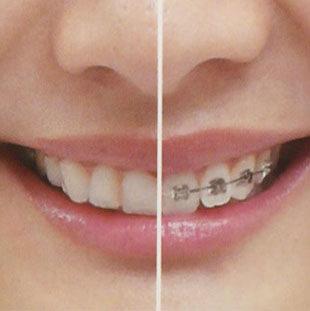 矯正治療 / 歯列矯正を始めませんか?のイメージ