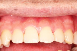 歯のクリーニング後・前歯