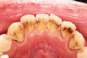 歯のクリーニング前・前歯の裏