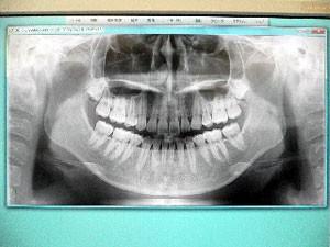 デジタルレントゲンの画像