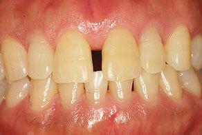ダイレクトボンディングで前歯のすき間を修復前