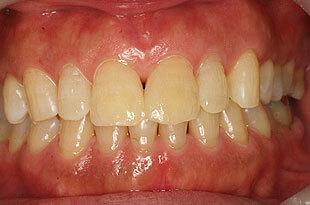 ダイレクトボンディングで前歯のすき間を修復後