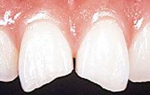 ダイレクト本ディングで欠けた歯の修復