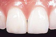 ダイレクトボンディングで修復した前歯