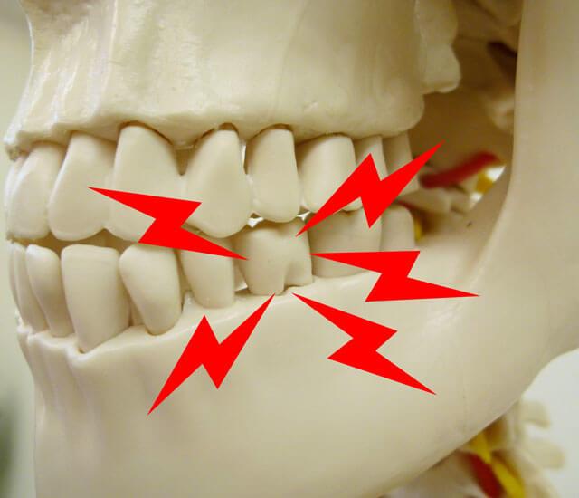 虫歯だけじゃない【歯の痛みとその原因】