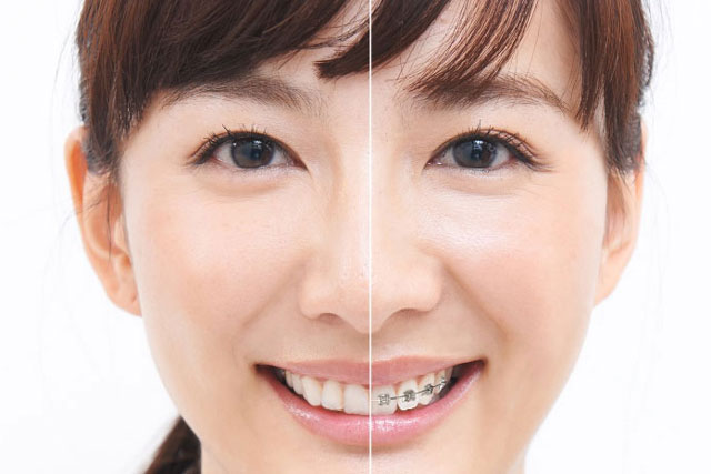 【矯正歯科】歯並び治療の流れ・料金システム