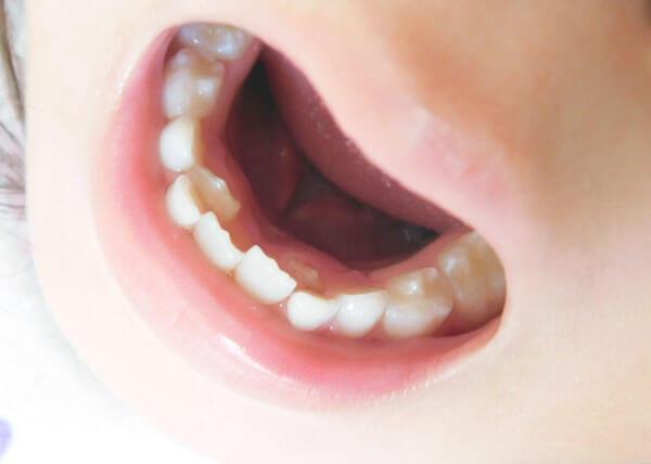 【子どもの矯正治療】お子様の歯並び。 「あれっ?」と思ったら早めにご相談下さい。